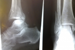 THE ANKLE FRACTURE  CASES IN INDIA