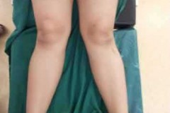 THE BEST DEFORMITY CORRECTION IN INDIA - CASE 1