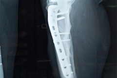 The Best Orthopedic Doctor in Chennai - Dr. Pranav Shah