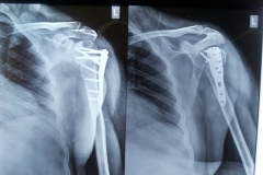 THE BEST JOINT STIFFNESS IN INDIA - CASE 5