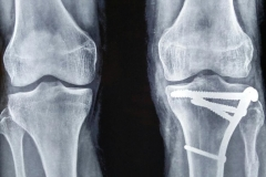 THE BEST KNEE FRACTURE CASES IN INDIA