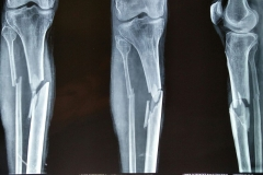 THE BEST LEG & TIBIA  CASES IN INDIA