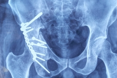 THE BEST PELVIC FRACTURE  CASES IN INDIA