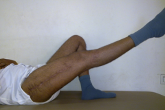 THE BEST PERI PROSTHETIC FRACTURES IN INDIA - CASE 1