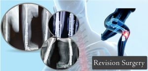 Best Revision Surgery in Ahmedabad - Best Revision Surgery Surgeon in Ahmedabad
