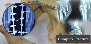 Best Complex Fracture in Ahmedabad - Best Complex Fracture Surgeon in Ahmedabad